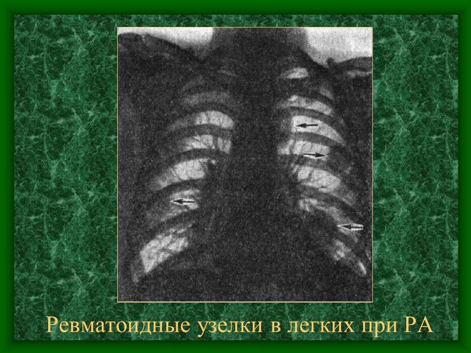 Ревматоидные узелки в легких при РА