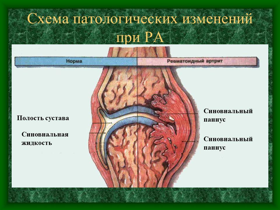 Схема патологических изменений при РА