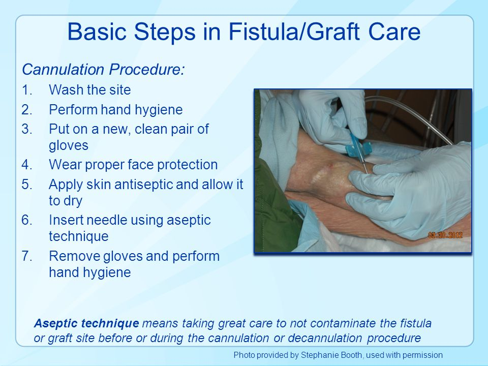 Basic Steps in Fistula/Graft Care