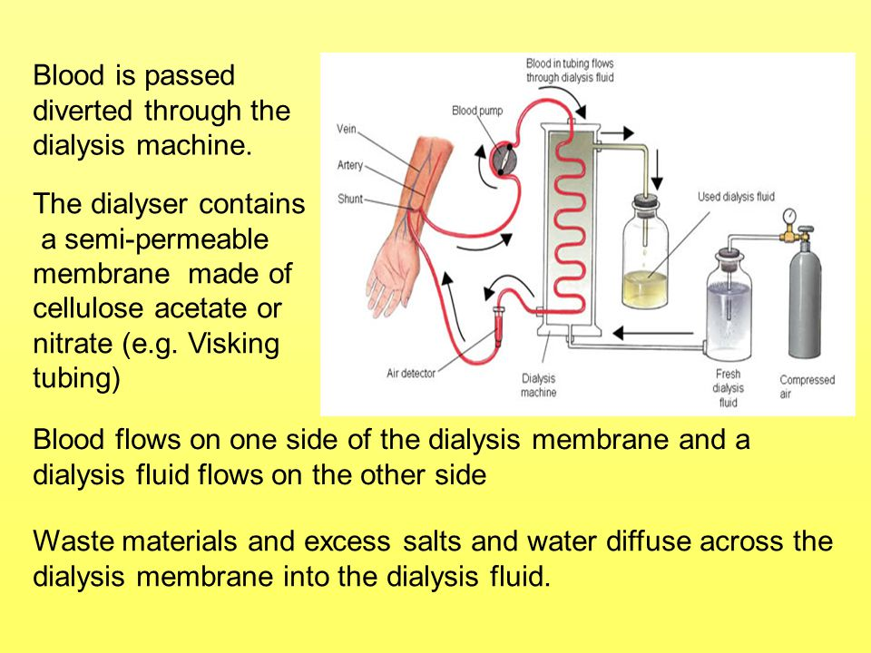 Blood is passed diverted through the dialysis machine. The dialyser contains.