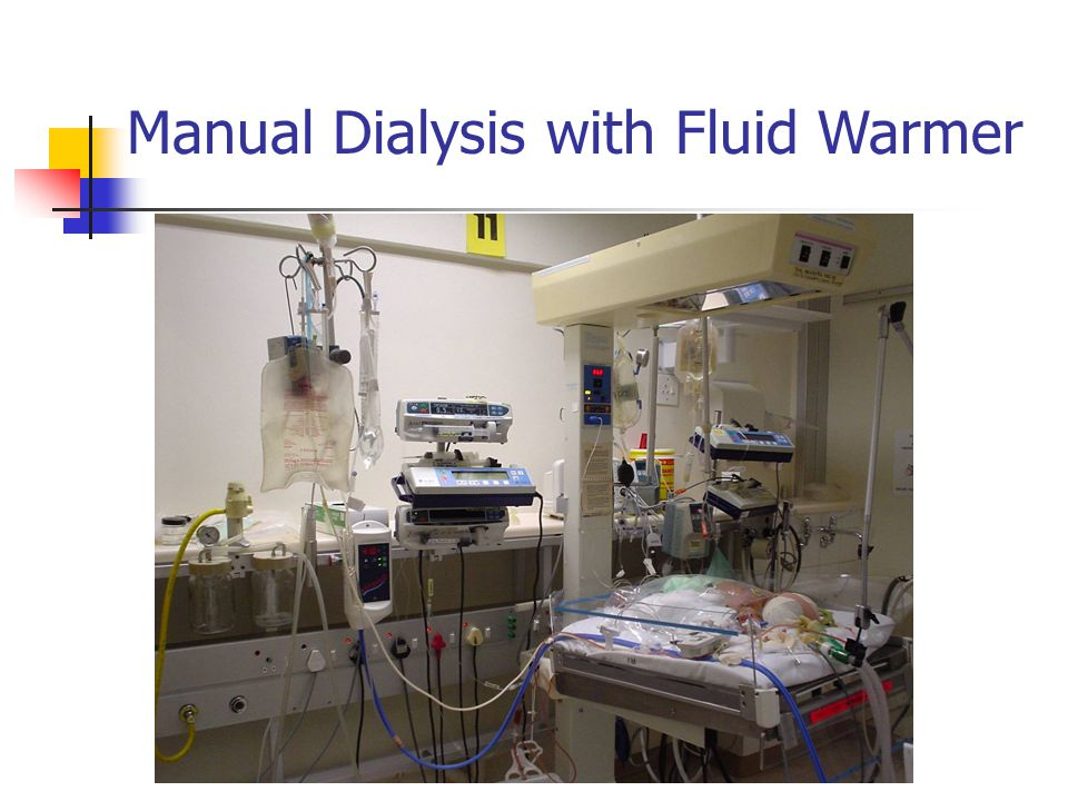 Manual Dialysis with Fluid Warmer
