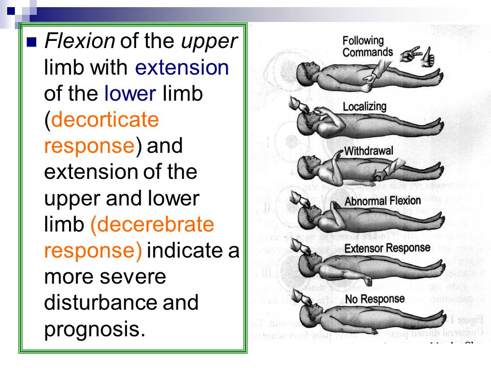 Flexion of the upper limb with extension of the lower limb (decorticate response) and extension of the upper and lower limb (decerebrate response) indicate a more severe disturbance and prognosis.