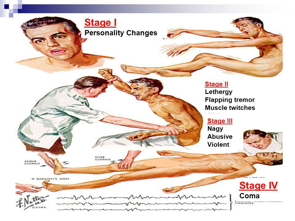 Stage I Stage IV Personality Changes Coma Stage II Lethergy