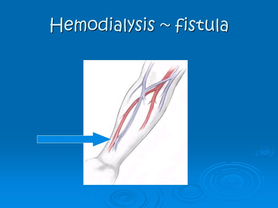 Hemodialysis ~ fistula