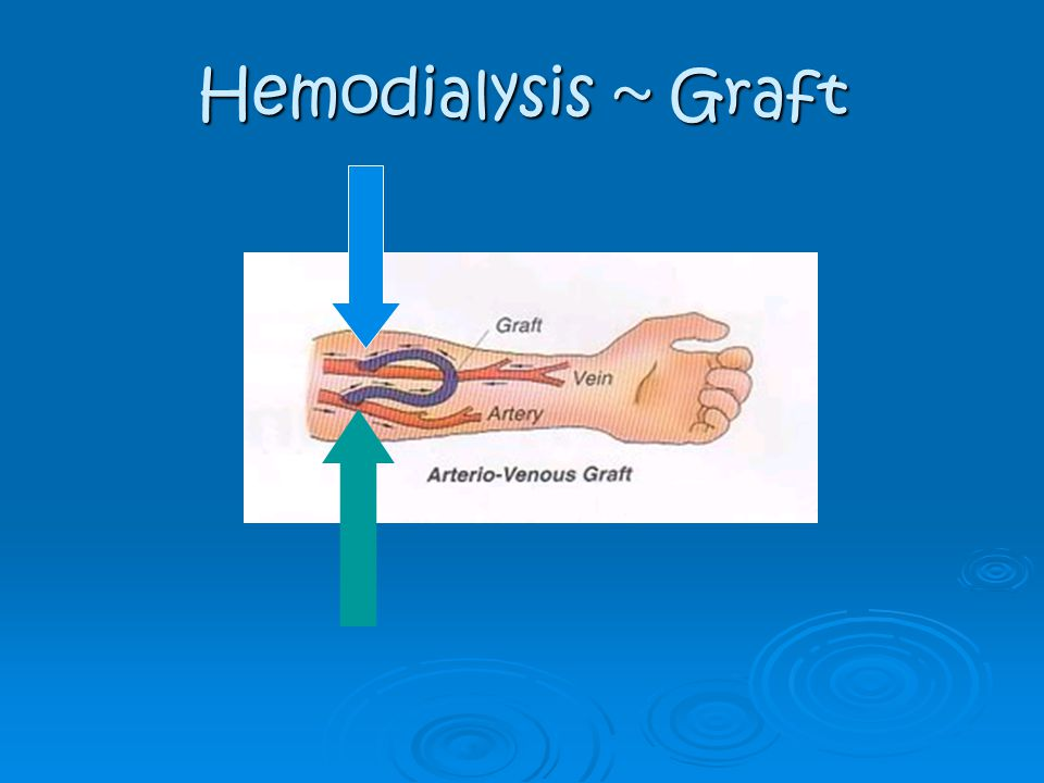Hemodialysis ~ Graft