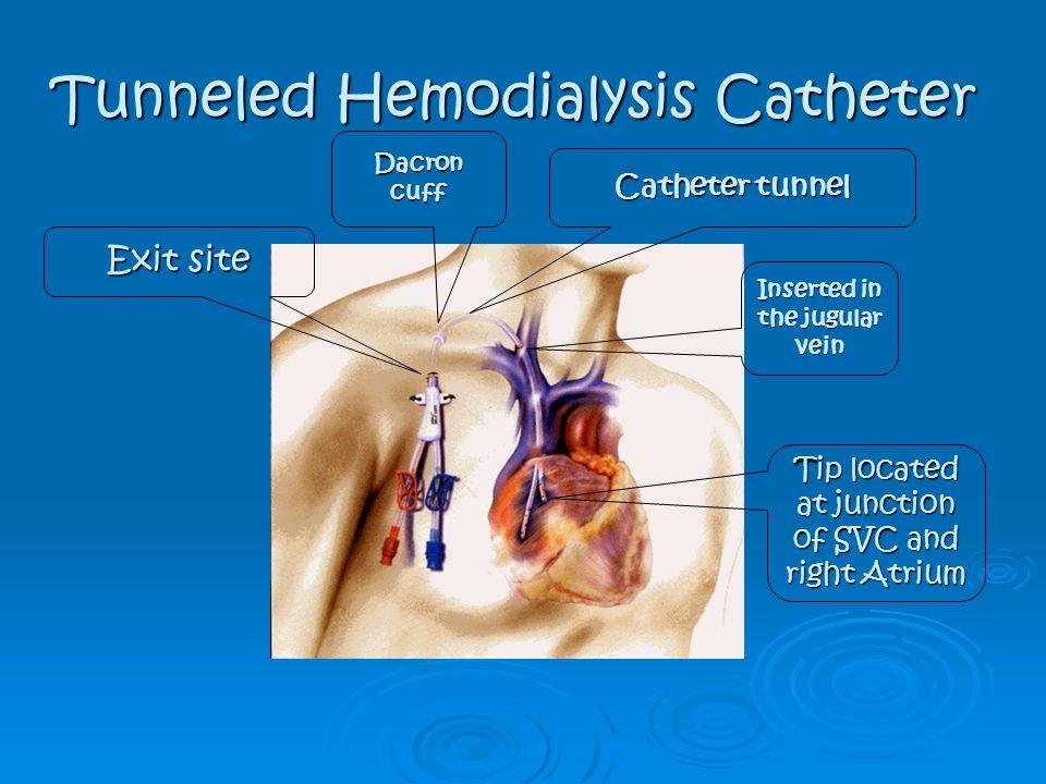 Tunneled Hemodialysis Catheter
