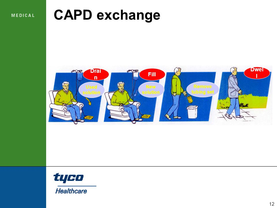 CAPD exchange Dwell Drain Fill Used solution New solution