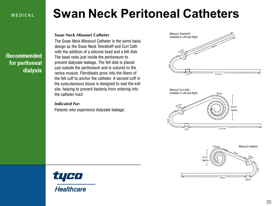 Swan Neck Peritoneal Catheters