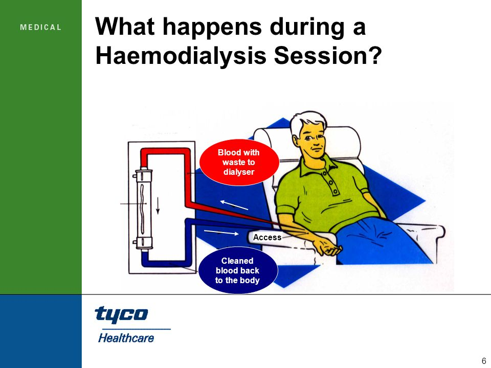 What happens during a Haemodialysis Session
