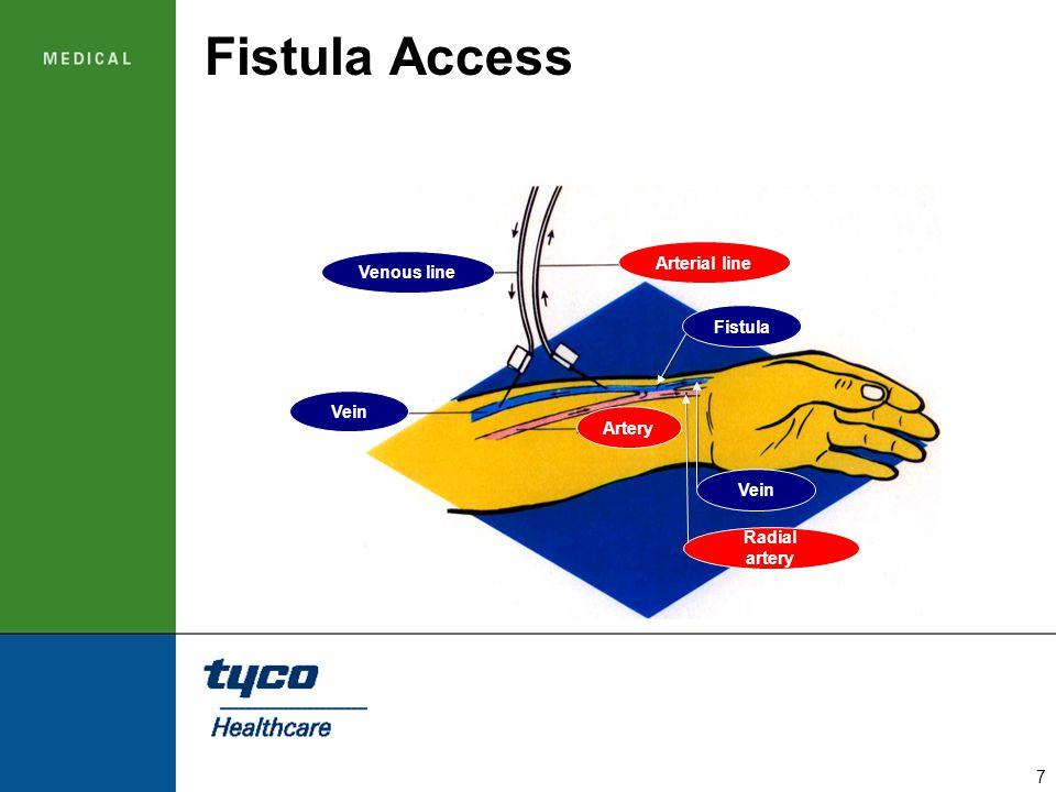 Fistula Access Arterial line Venous line Fistula Vein Artery Vein