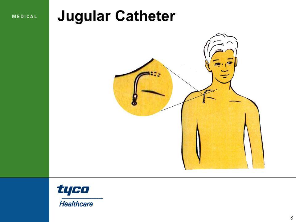 Jugular Catheter