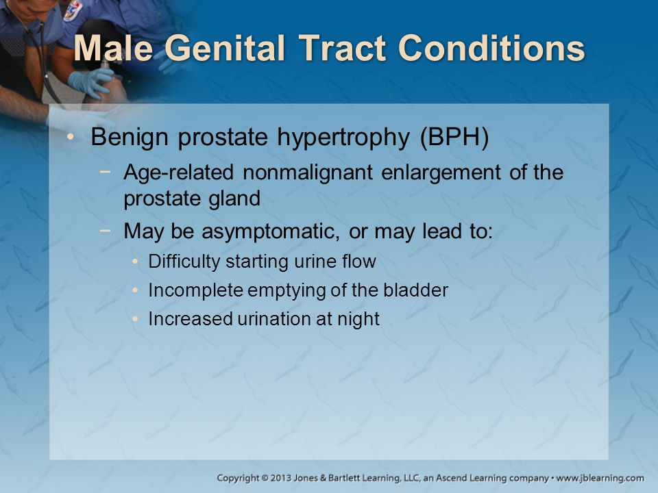 Male Genital Tract Conditions