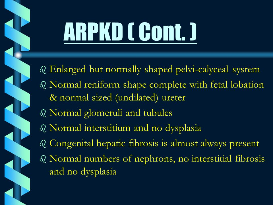 ARPKD ( Cont. ) Enlarged but normally shaped pelvi-calyceal system
