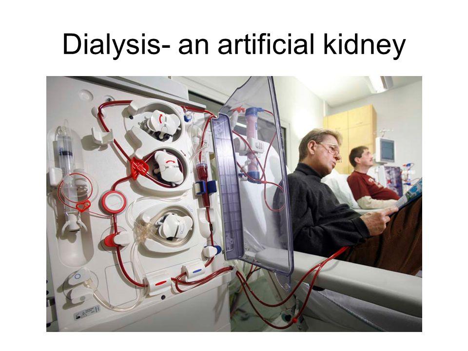 Dialysis- an artificial kidney