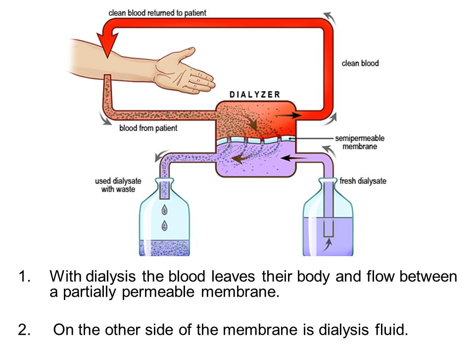 With dialysis the blood leaves their body and flow between a partially permeable membrane.