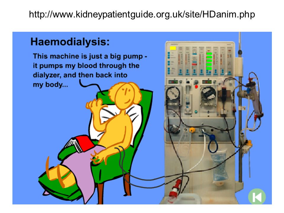 http://www.kidneypatientguide.org.uk/site/HDanim.php