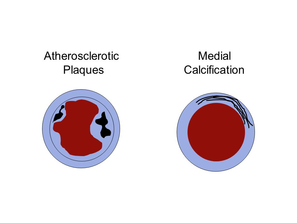 Atherosclerotic Plaques Medial Calcification