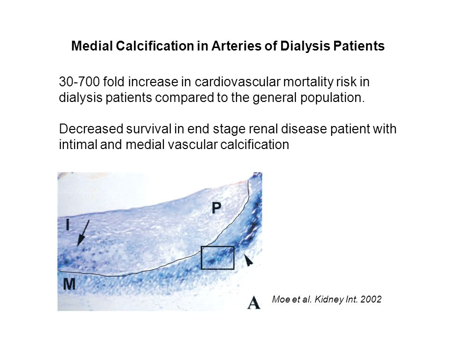Medial Calcification in Arteries of Dialysis Patients