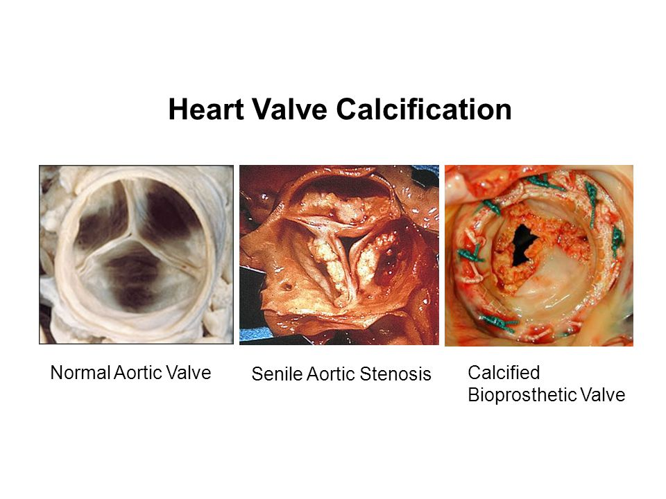 Heart Valve Calcification