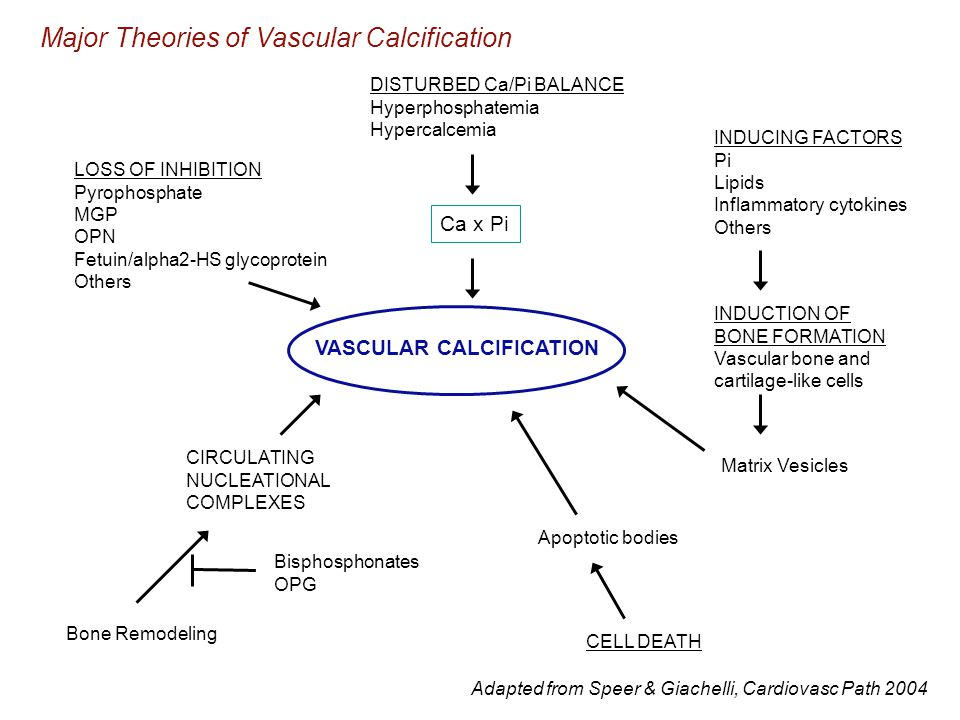 Major Theories of Vascular Calcification