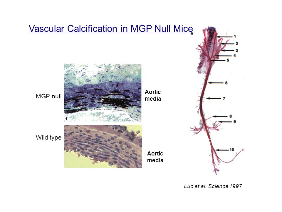 Vascular Calcification in MGP Null Mice