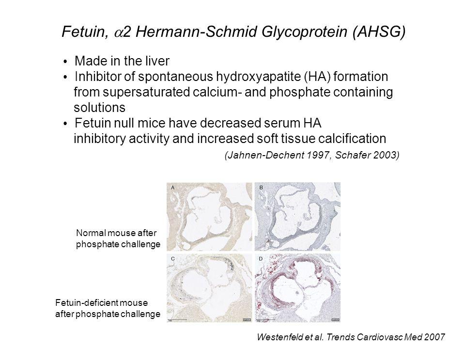 Fetuin, 2 Hermann-Schmid Glycoprotein (AHSG)