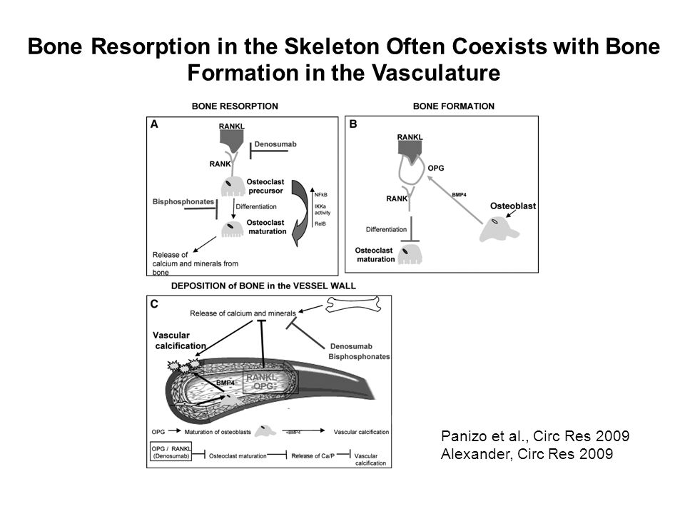 Bone Resorption in the Skeleton Often Coexists with Bone Formation in the Vasculature