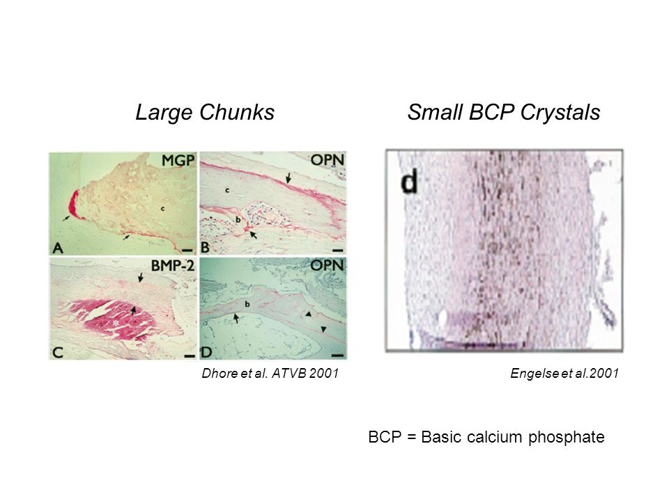 Large Chunks Small BCP Crystals BCP = Basic calcium phosphate