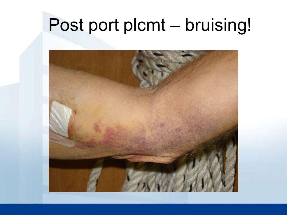 Post port plcmt – bruising!
