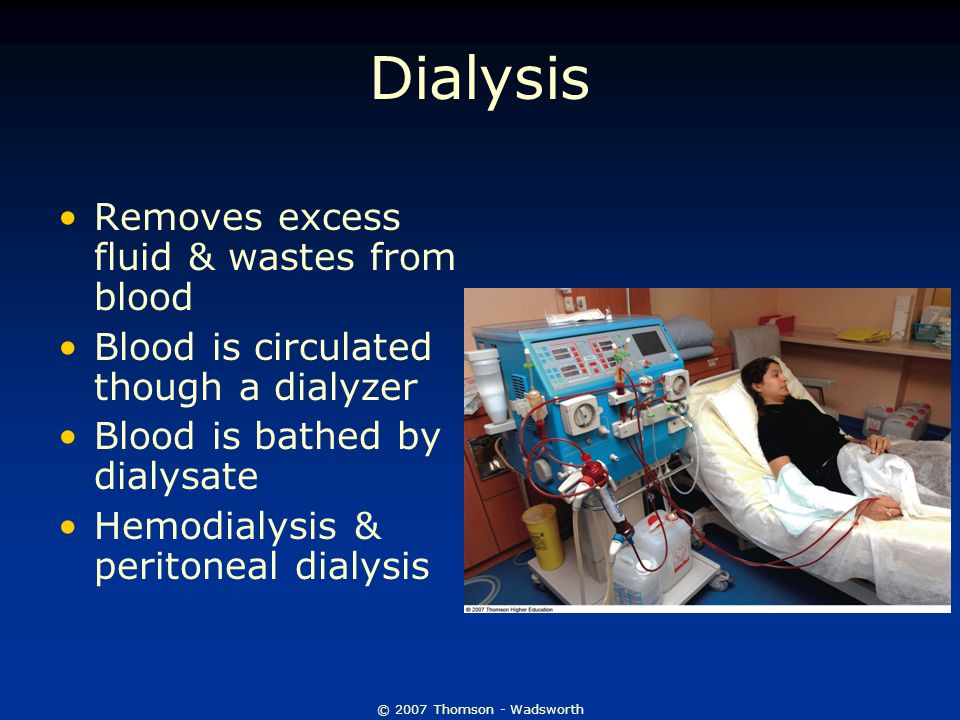 Dialysis Removes excess fluid & wastes from blood