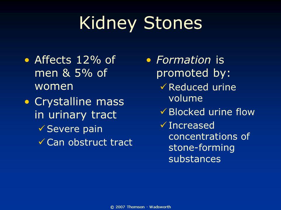 Kidney Stones Affects 12% of men & 5% of women