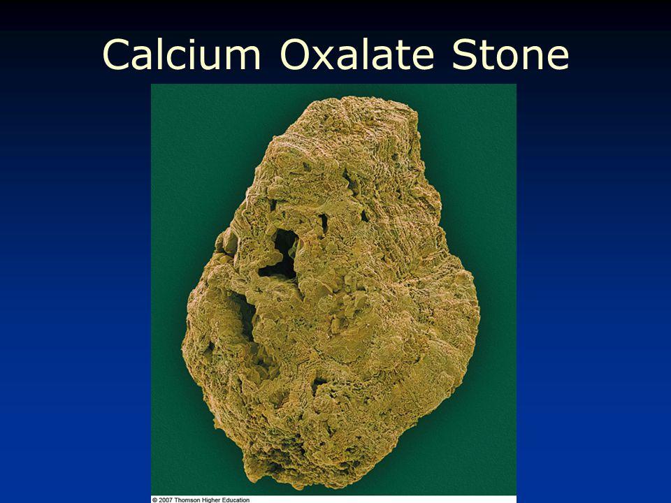 Calcium Oxalate Stone © 2007 Thomson - Wadsworth
