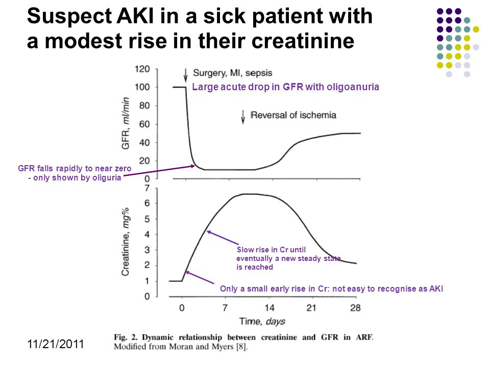 Suspect AKI in a sick patient with a modest rise in their creatinine