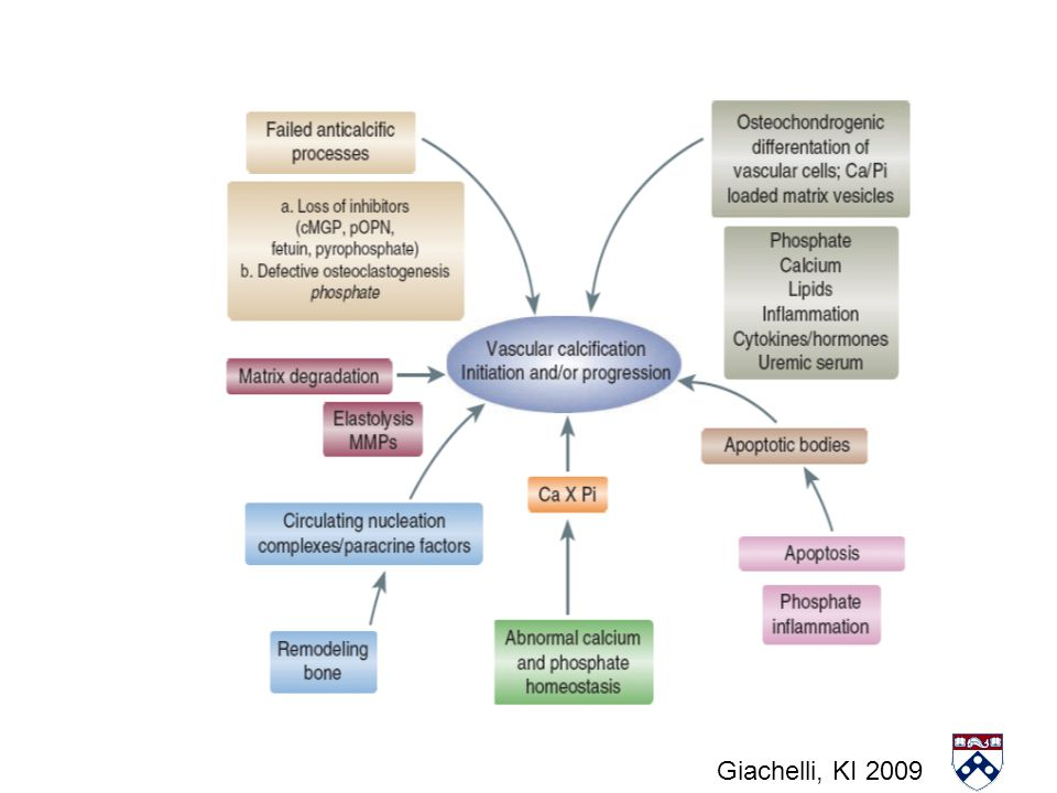 Major mechanisms of vascular calcification