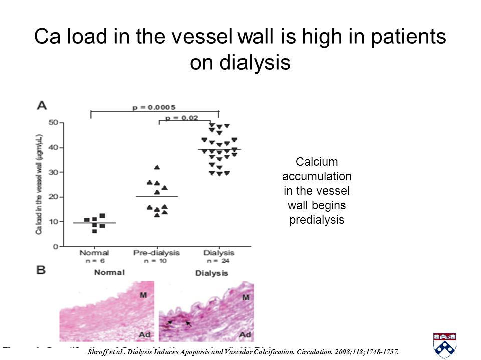 Ca load in the vessel wall is high in patients on dialysis