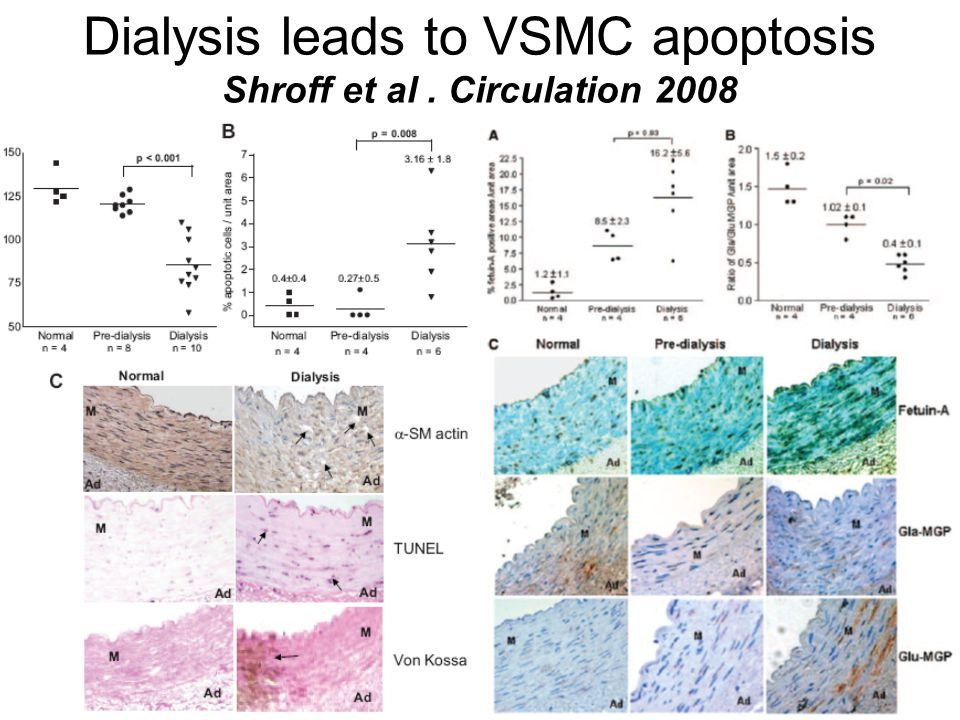Dialysis leads to VSMC apoptosis Shroff et al . Circulation 2008