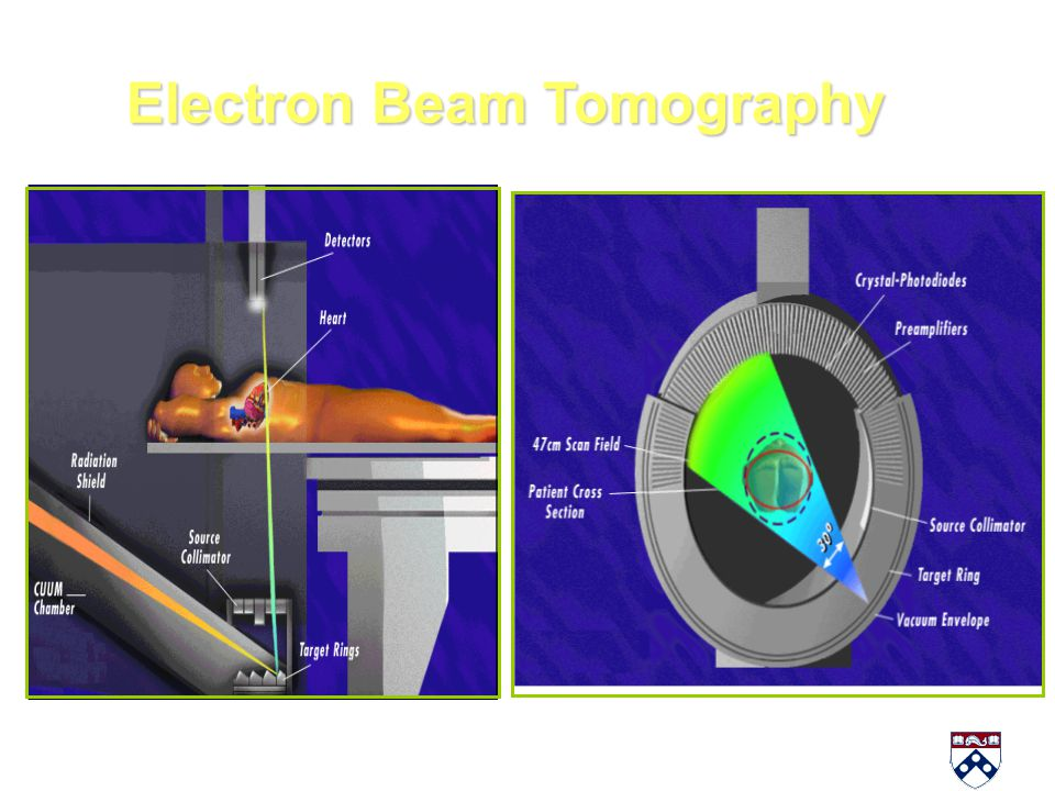 Electron Beam Tomography