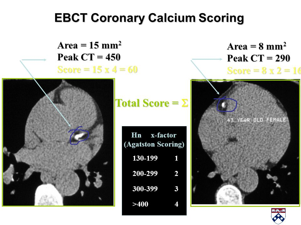 EBCT Coronary Calcium Scoring