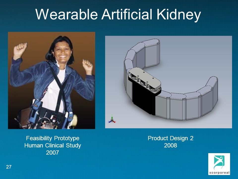 Wearable Artificial Kidney