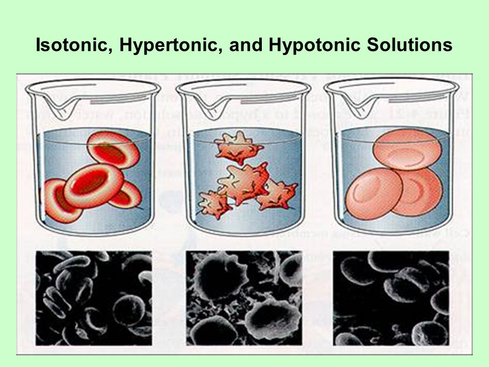 Isotonic, Hypertonic, and Hypotonic Solutions