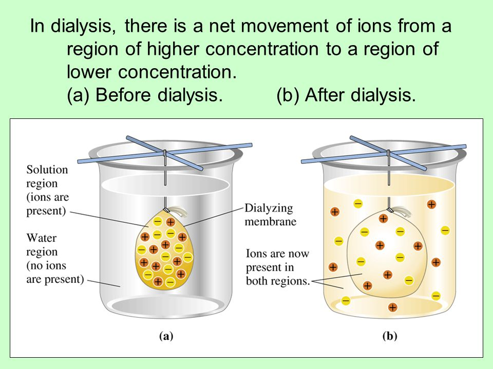 In dialysis, there is a net movement of ions from a region of higher concentration to a region of lower concentration.