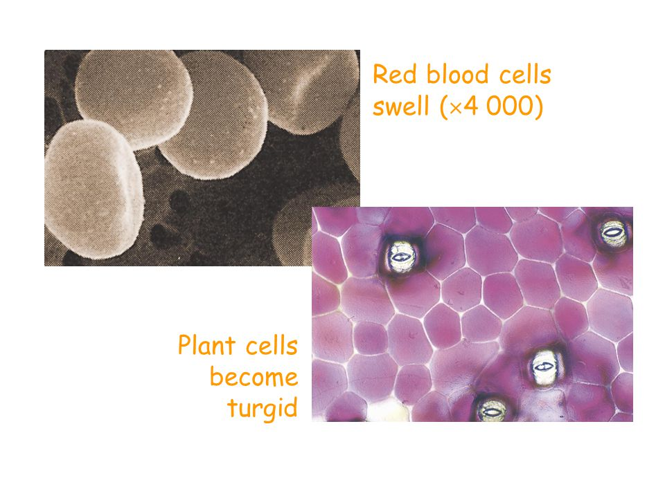 Red blood cells swell (4 000)