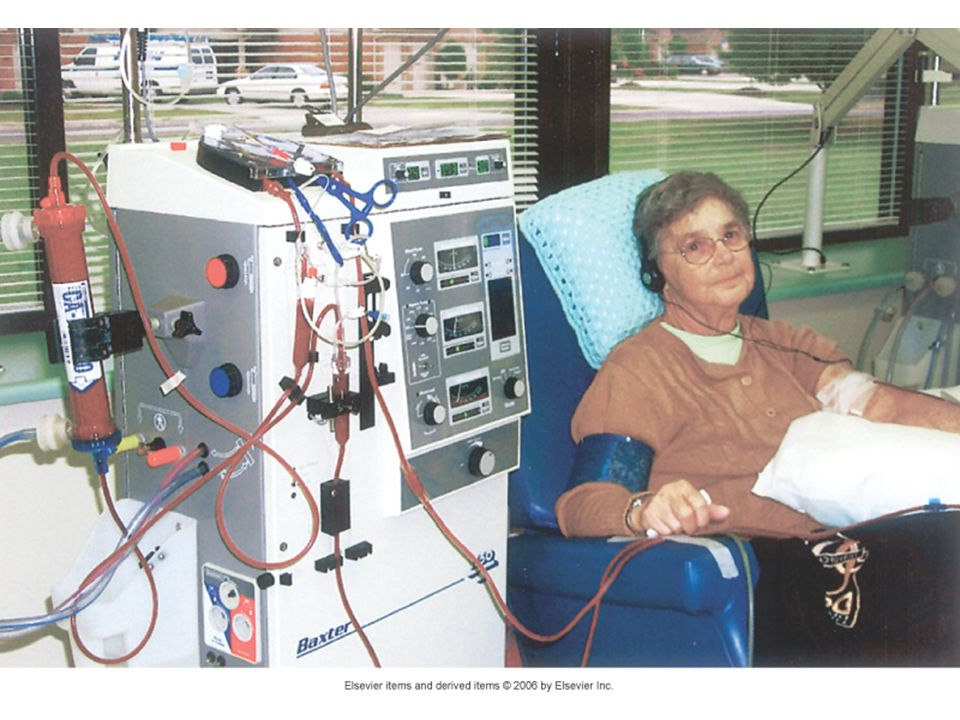 Complications of Hemodialysis