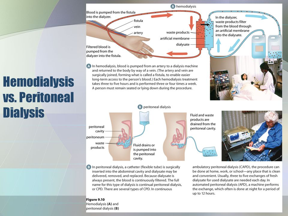 Hemodialysis vs. Peritoneal Dialysis