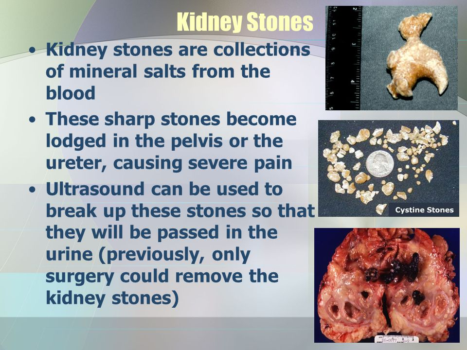 Kidney Stones Kidney stones are collections of mineral salts from the blood.
