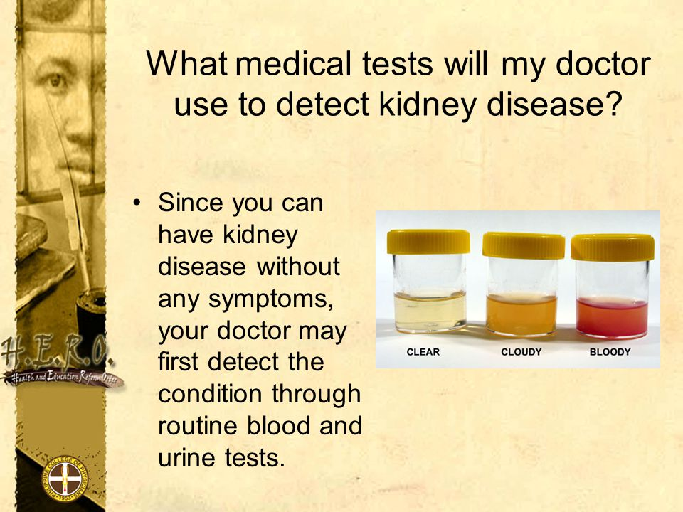 What medical tests will my doctor use to detect kidney disease