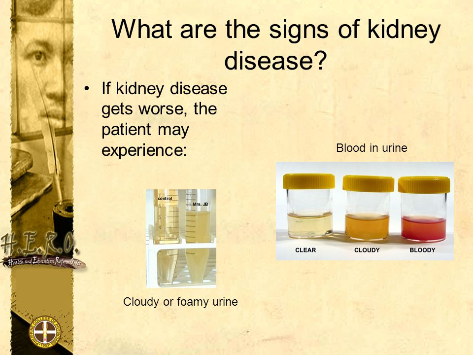 What are the signs of kidney disease