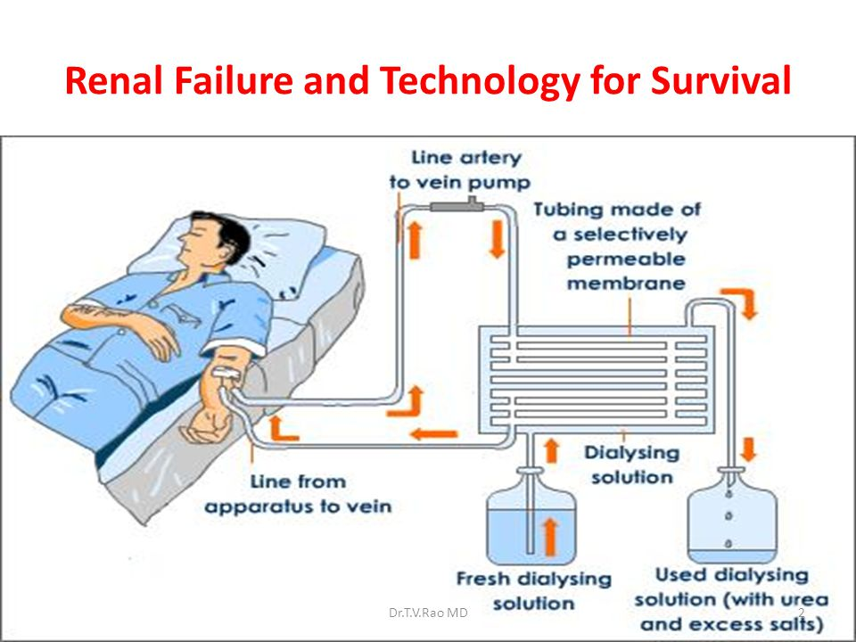 Renal Failure and Technology for Survival