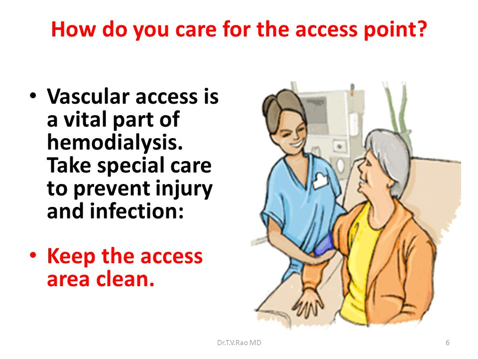 How do you care for the access point