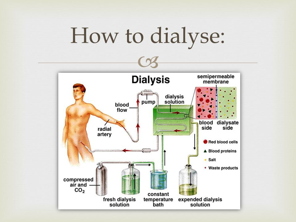 How to dialyse:
